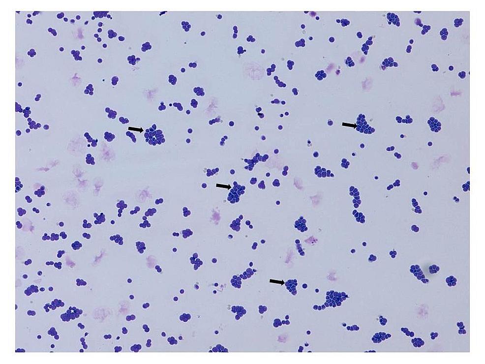 Cerebrospinal-fluid-cytology