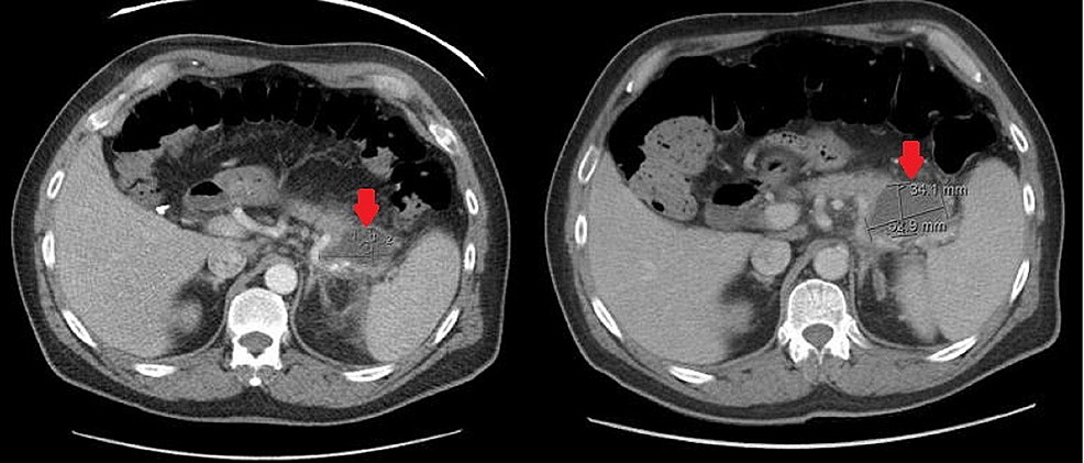 A-5.2-x-2.7-cm-cystic-lesion-was-noted-on-initial-computed-tomography-(CT)-abdomen-with-contrast-on-prior-admission-(left,-red-arrow).-Subsequent-CT-abdomen-with-contrast-two-months-later-(on-current-admission)-showed-the-lesion-had-increased-to-5.3-x-3.4-cm-(right,-red-arrow).