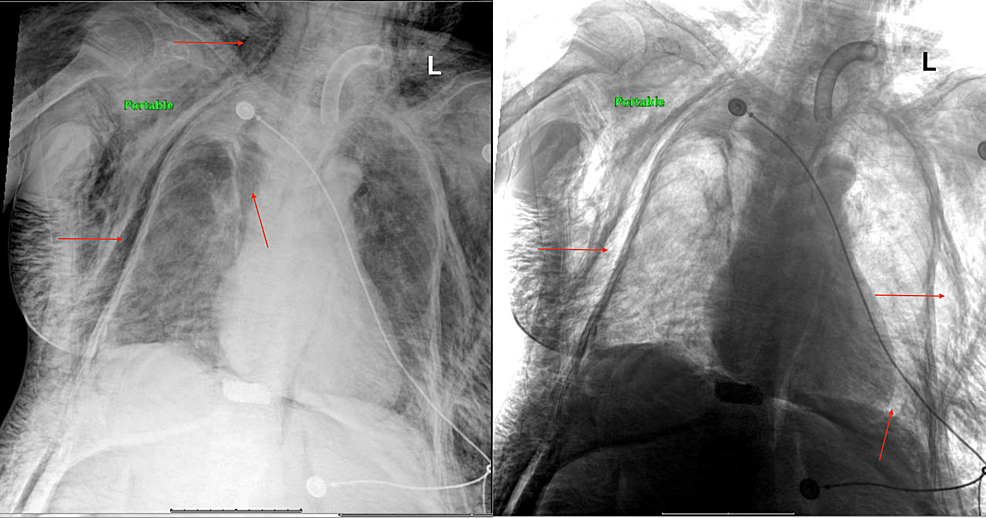 Portable-chest-X-ray-showing-pneumomediastinum-and-massive-subcutaneous-emphysema.