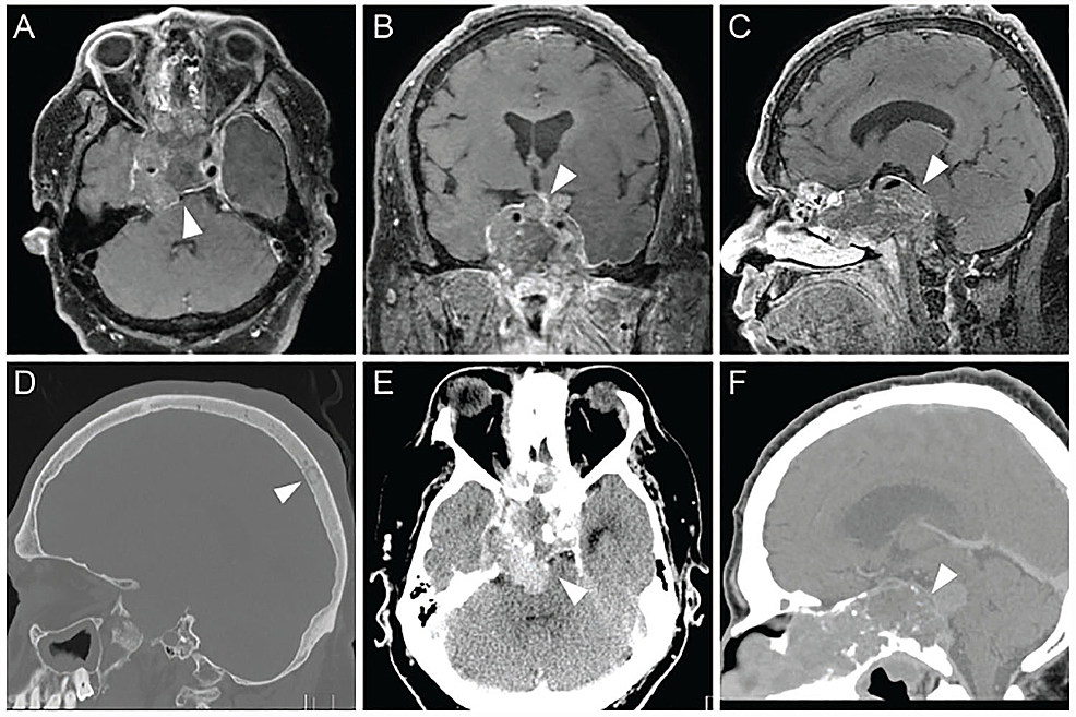 Patient-transition-to-pituitary-carcinoma