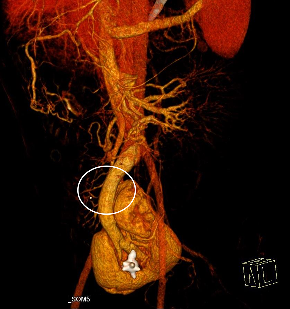 A-three-dimensional-volume-rendering-revealed-a-single-renal-vein-draining-the-fused-renal-parenchyma-into-the-inferior-vena-cava.