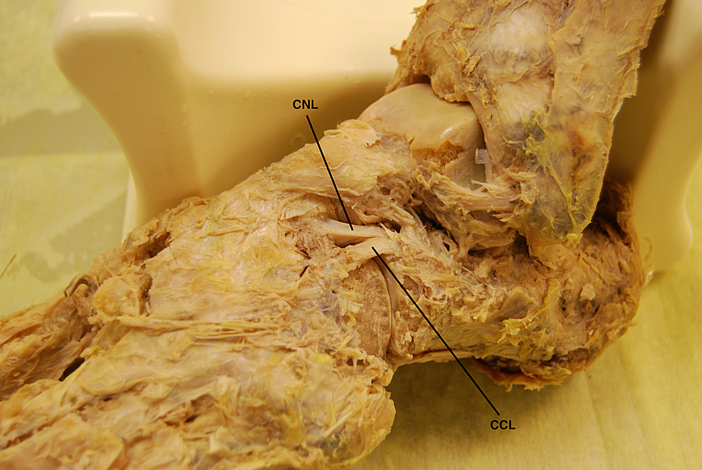 Superolateral-view-of-the-bifurcate-ligament-(BL)-and-its-constituent-bands-in-a-cadaveric-left-foot