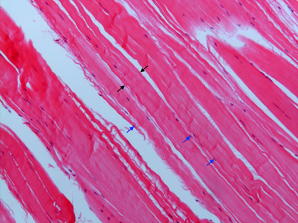 Histology-of-the-calcaneocuboid-ligament