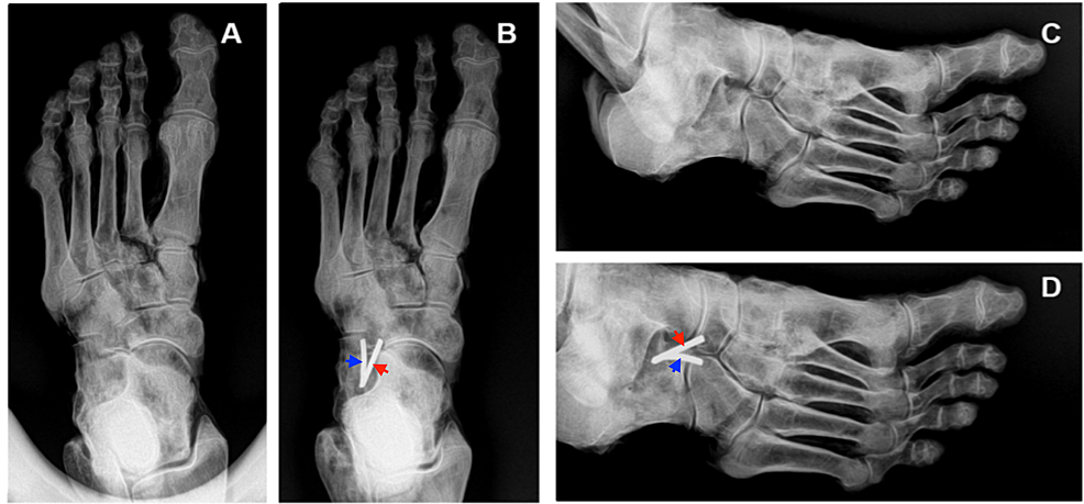 Plain-film-radiographs-of-a-cadaveric-left-foot-with-and-without-monofilament-attached-to-the-bifurcate-ligament