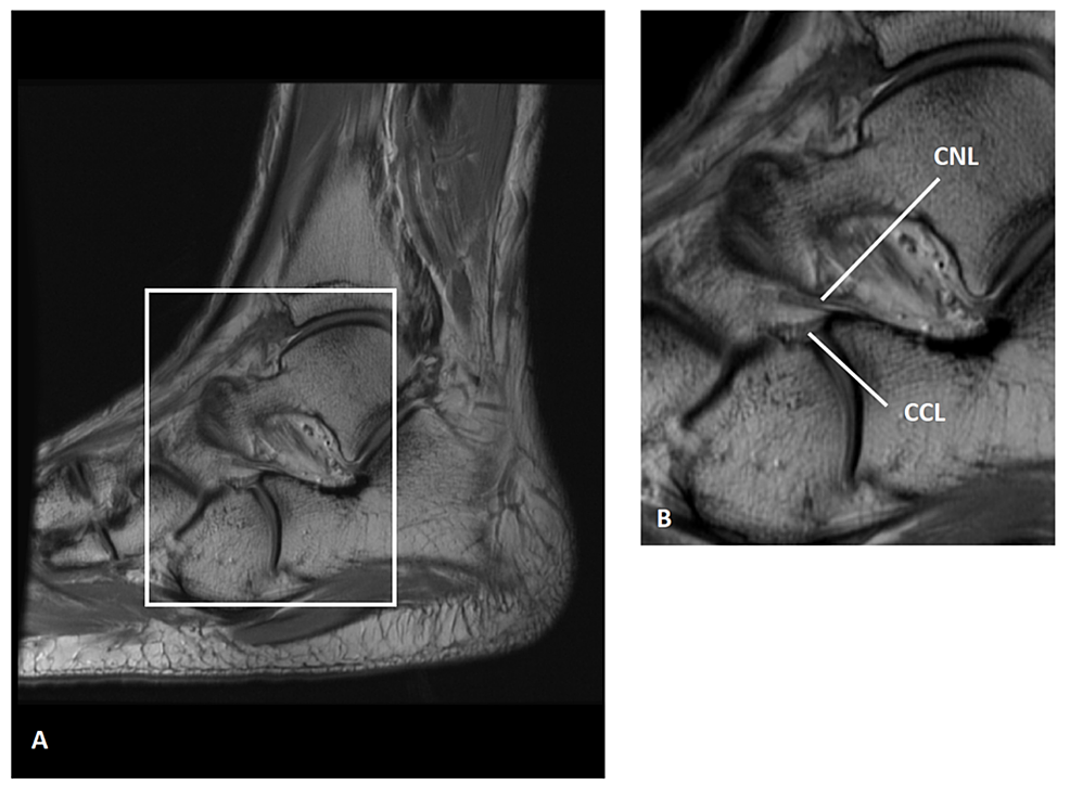 Bifurcate-ligament-of-a-30-year-old-man-shown-on-a-sagittal,-proton-density-magnetic-resonance-imaging