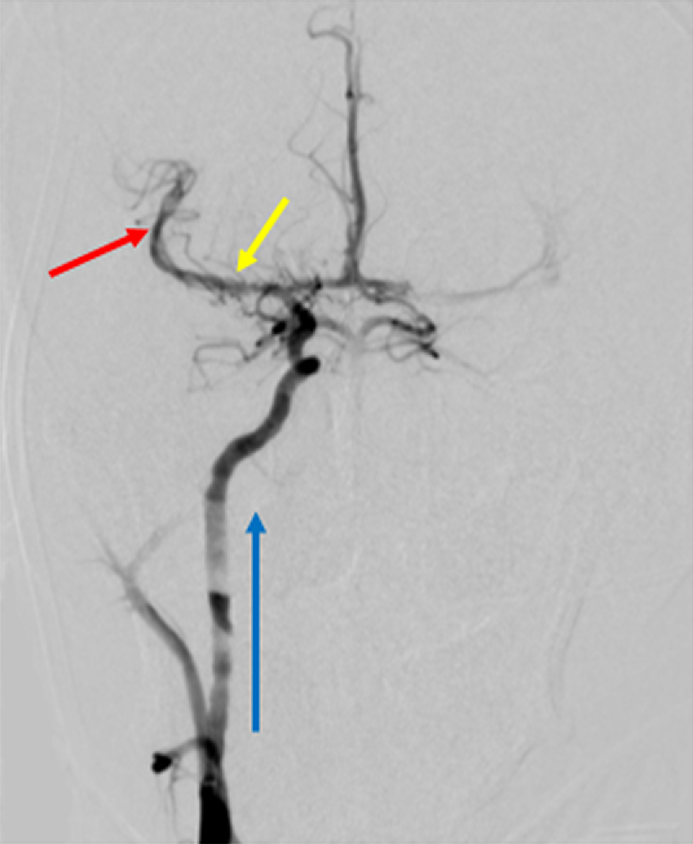 Post-procedural-Cerebral-Angiogram