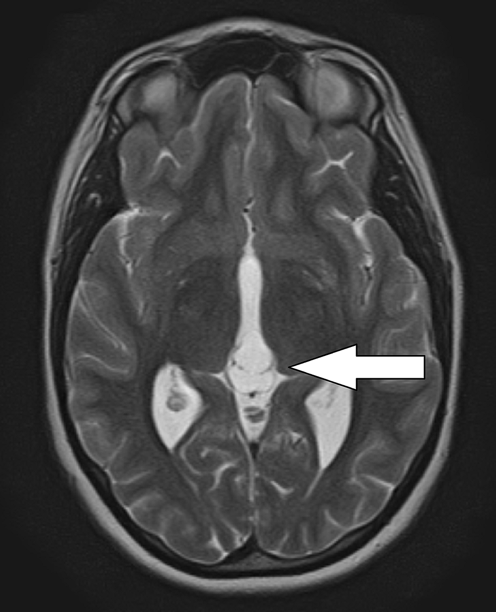 T2-weighted-axial-magnetic-resonance-imaging-(MRI)-demonstrating-septated-pineal-cyst.