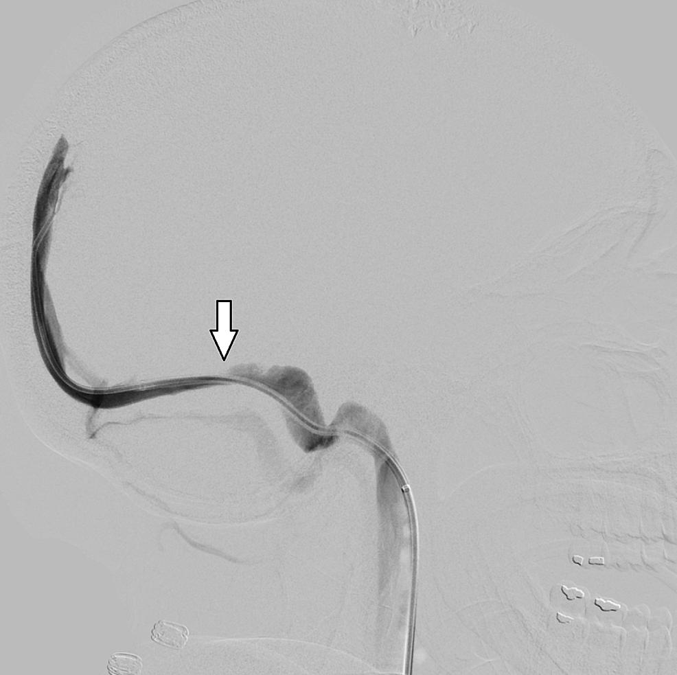 Lateral-catheter-angiogram-demonstrating-focal-stenosis-in-left-transverse-sinus.