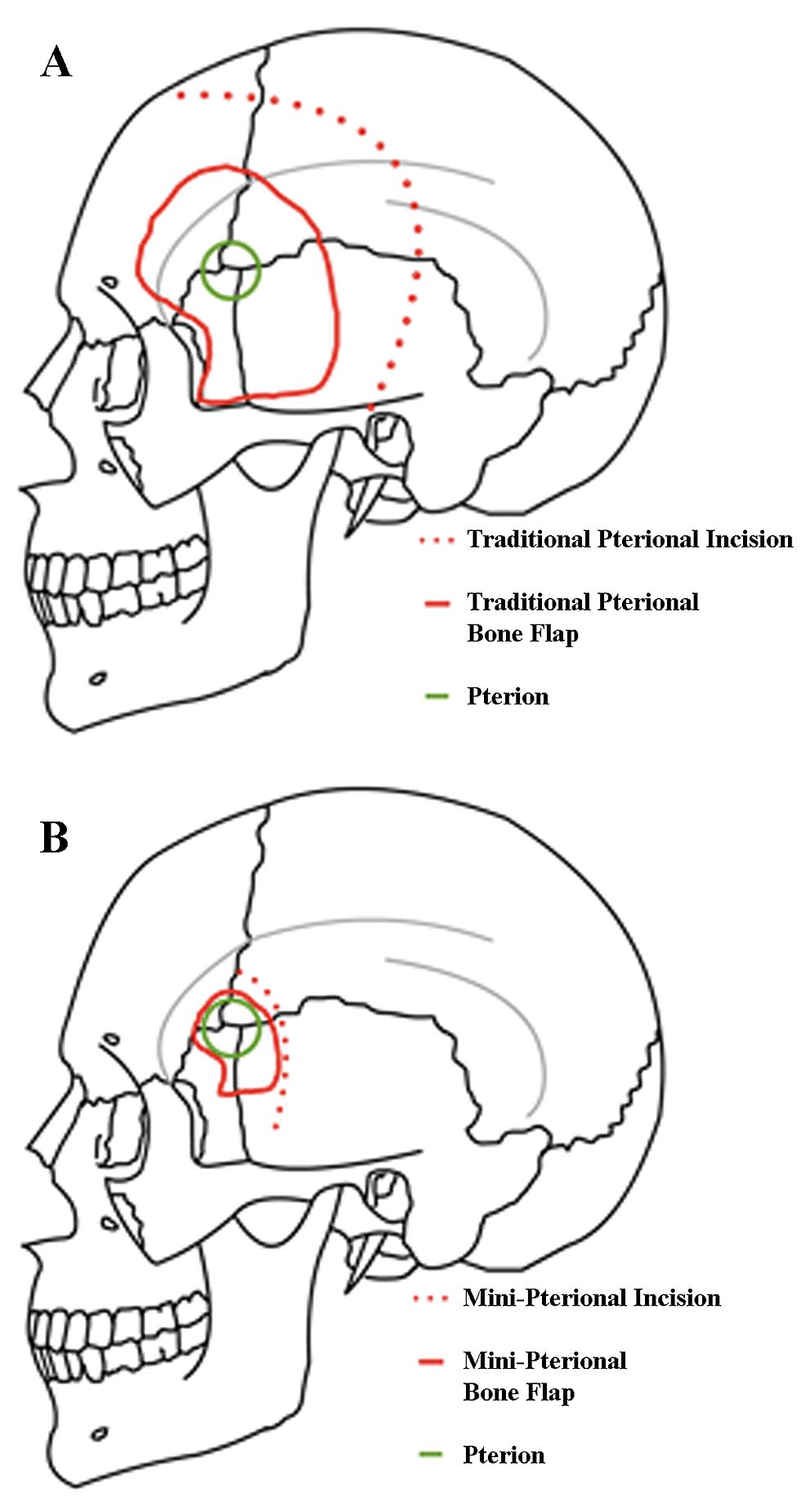 Cureus | Management of Intracranial Meningiomas Using Keyhole Techniques