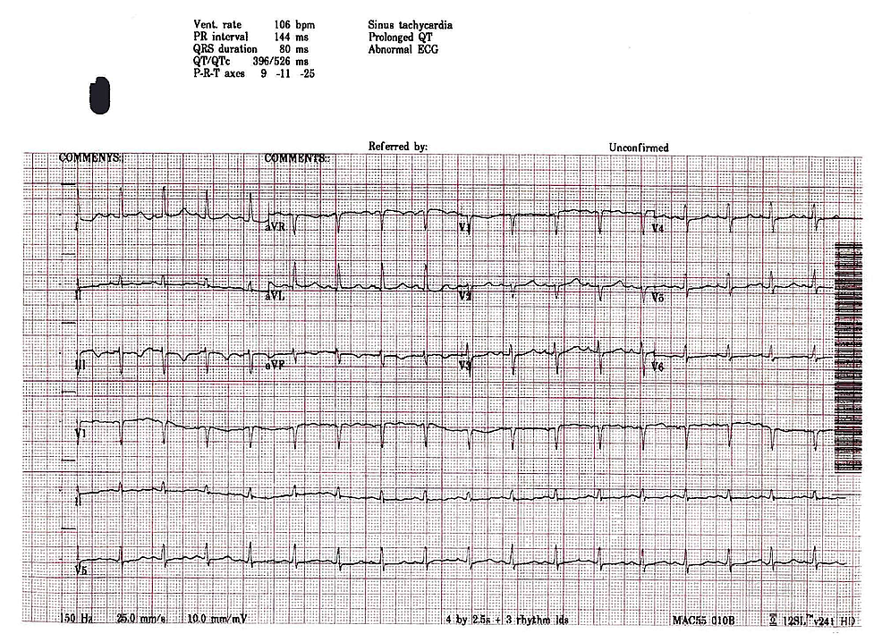 ECG-upon-admission-to-PACU