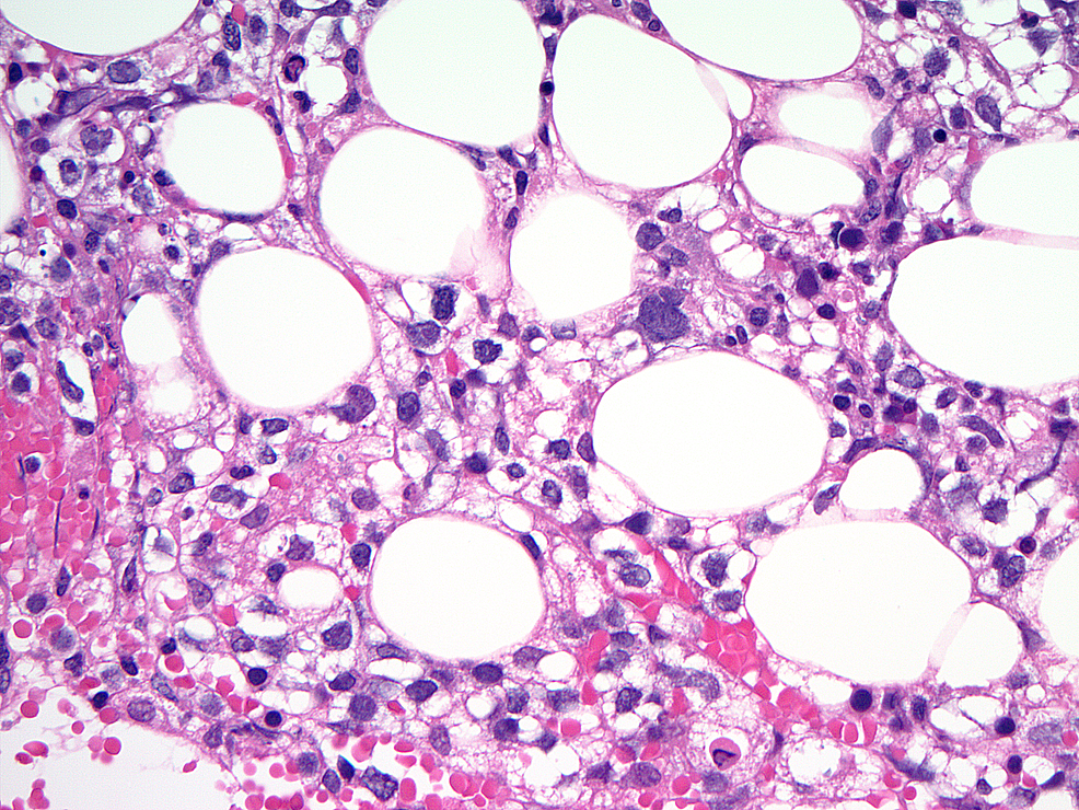 Bone-marrow-biopsy-picture