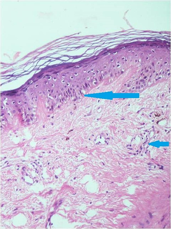 Skin-histopathology-(hematoxylin-and-eosin,-200X)