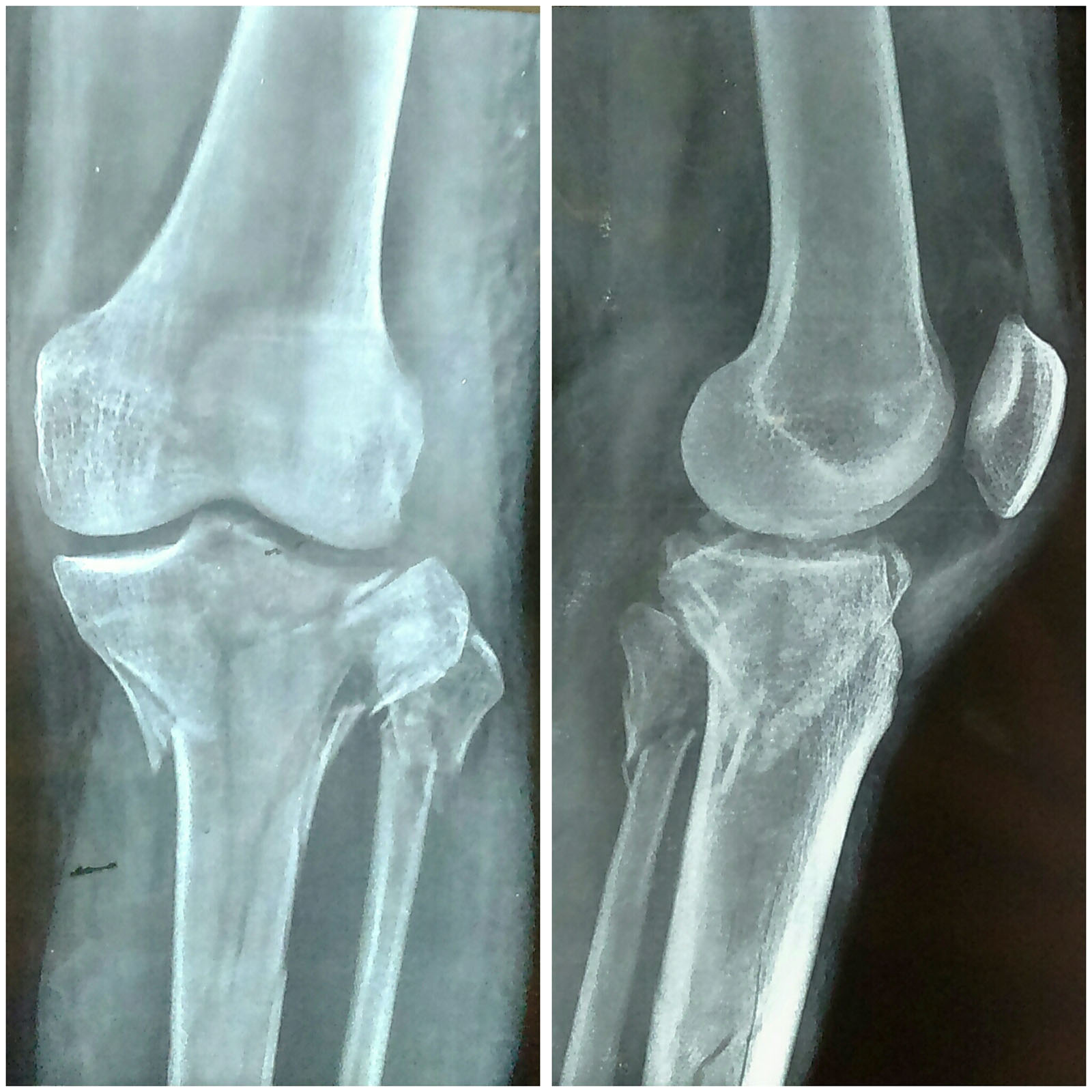 Cureus | Minimally Invasive Treatment of a Complex Tibial Plateau ...