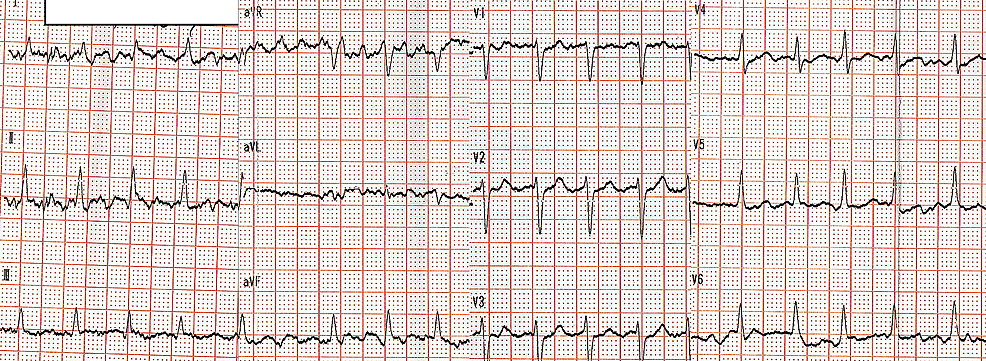 Patient's-ECG-when-admitted-to-the-emergency-department