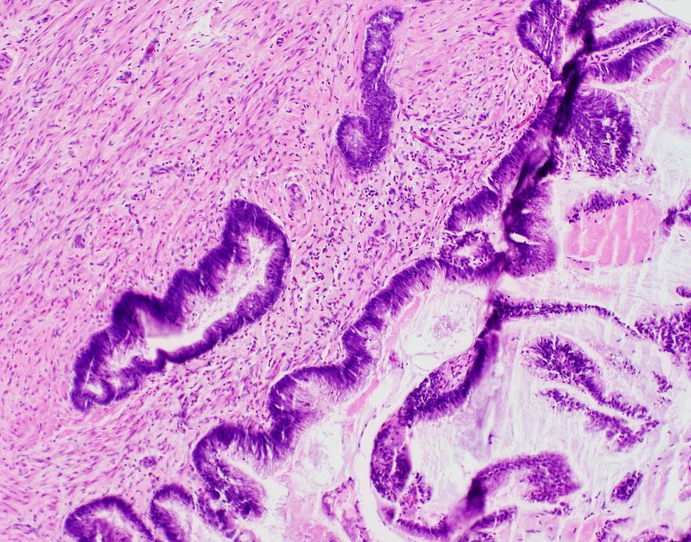 Medium-power-magnification-of-low-grade-appendiceal-mucinous-neoplasm-(LAMN)