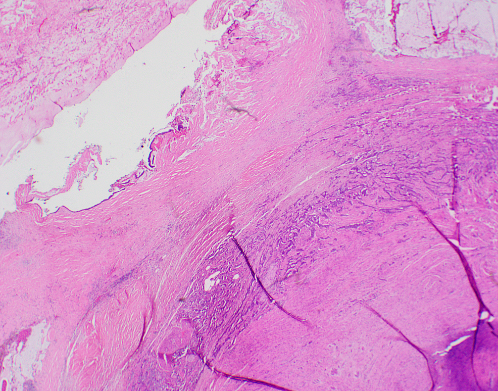 Low-power-magnification-of-the-appendix-wall-showing-combined-low-grade-appendiceal-mucinous-neoplasm-(LAMN)-(left)-and-well-differentiated-neuroendocrine-tumor-grade-1-(right).-The-latter-is-composed-of-cords-and-tubules-of-neuroendocrine-cells