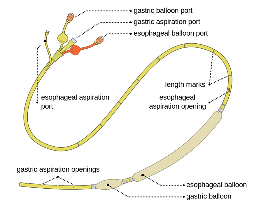 """Example-of-a-balloon-tamponade-device-(""""Sengstaken-Blakemore©-Tube""""-by-Olek-Remesz-is-licensed-under-CC-BY-SA-3.0-via-Wikimedia-Commons)."""