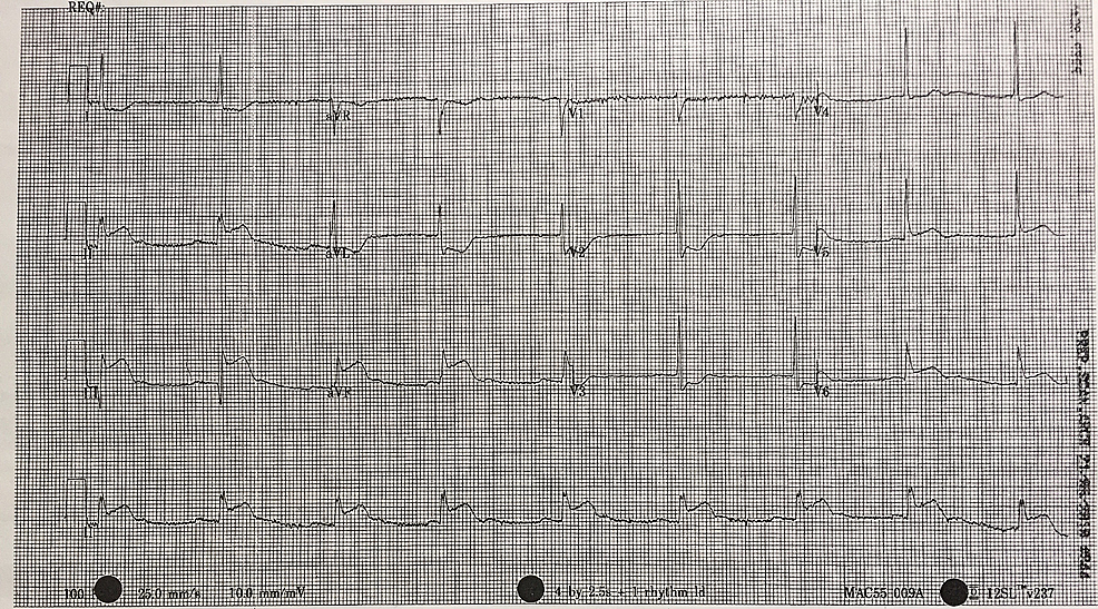 12-lead-electrocardiogram-(ECG)-demonstrating-evidence-of-inferior-myocardial-infarction-(MI).-ST-elevation-is-seen-in-leads-II,-III-and-aVF.-Reciprocal-changes-can-be-seen-in-leads-I,-aVL,-V2-and-V3.-There-is-also-some-ST-elevation-in-leads-V5-and-V6.