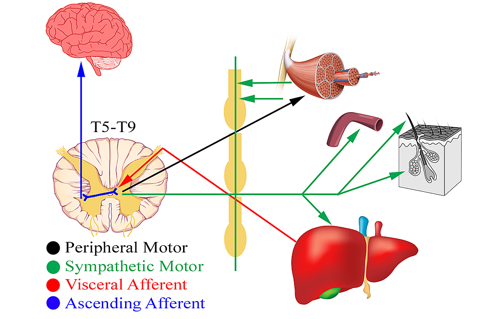 Schematic-diagram-of-hepatic-viscerosomatics-and-its-associated-musculoskeletal-manifestations