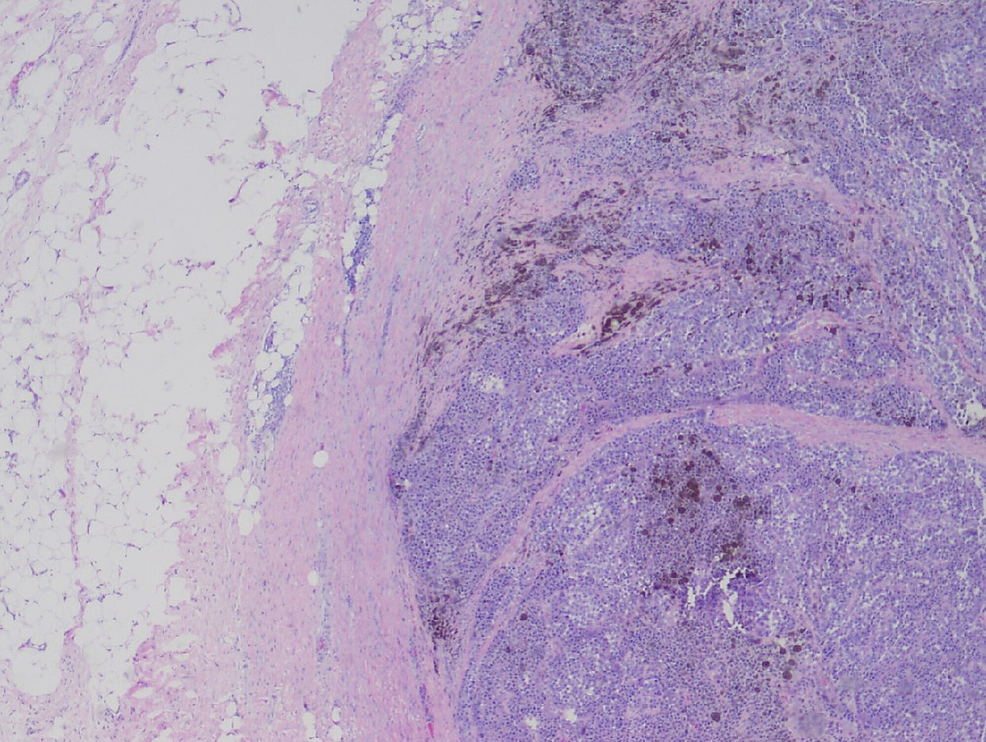 A-predominantly-mucosal/-submucosal-mass-with-brown-pigments-(H&E,-25X).
