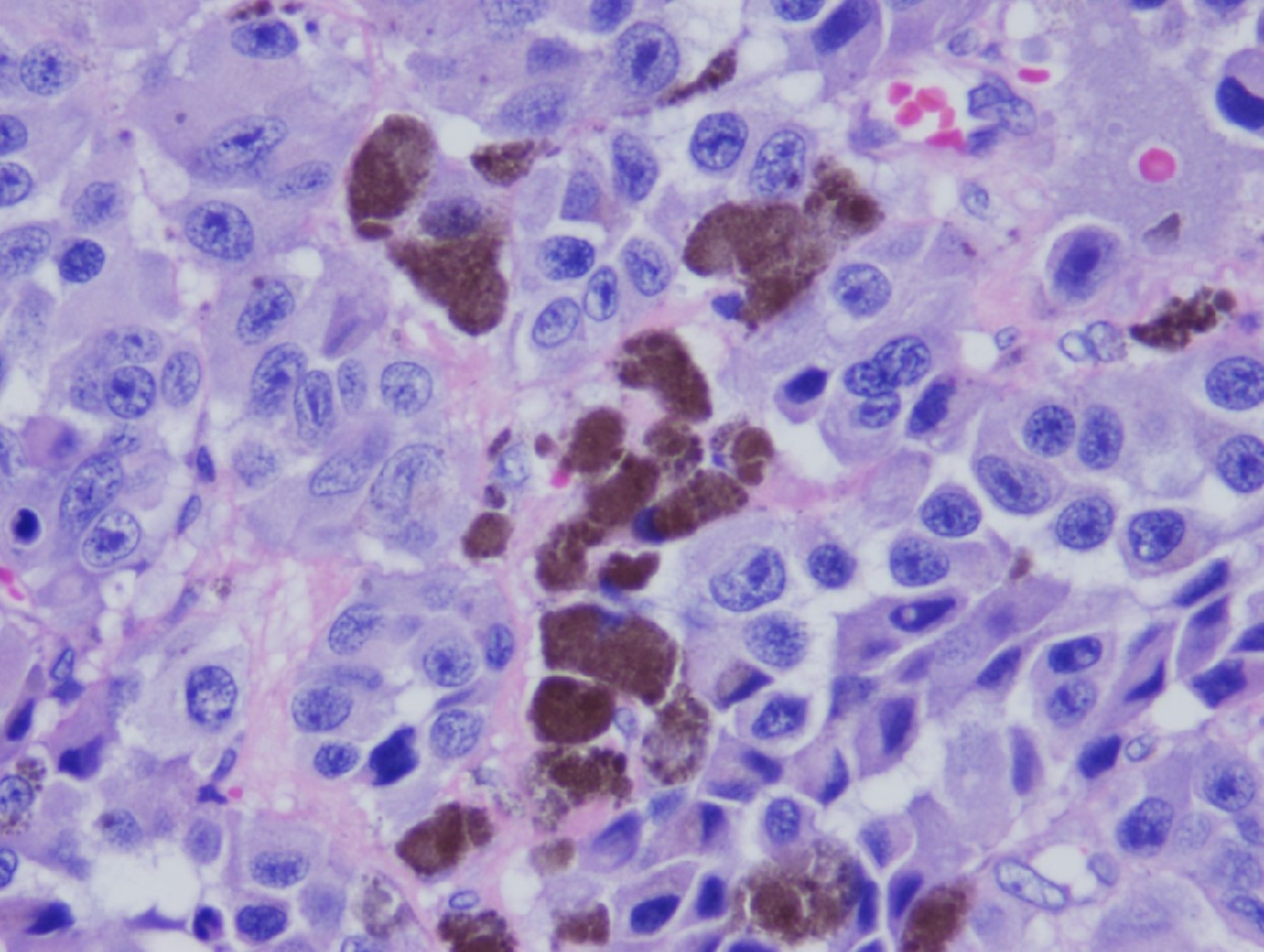 Cureus Isolated Asymptomatic Metastatic Melanoma To The Colon A Case Report