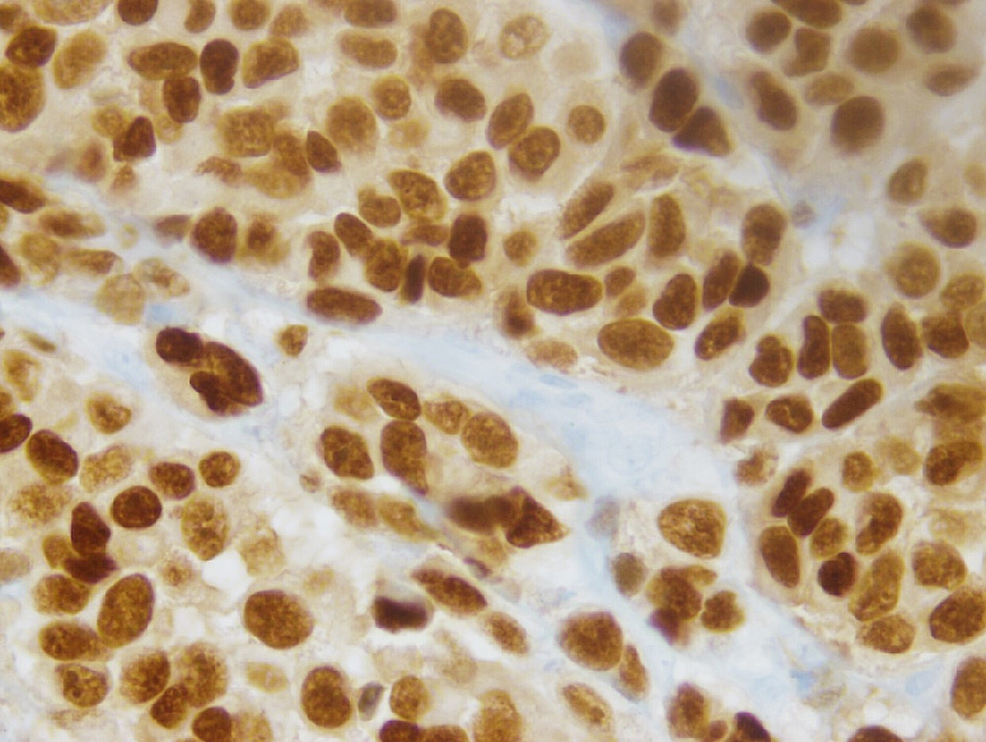 Cancer-cell-nuclei-uniformly-expressed-SOX10-(immunohistochemical-stain,-400X).