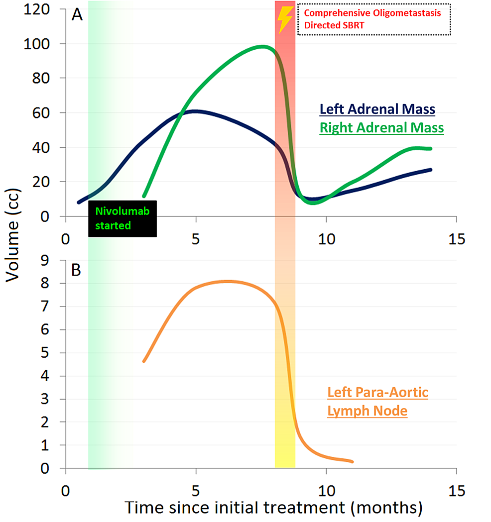 Time-course-of-volumetric-changes-plotted-against-time-since-initial-definitive-treatment-for-left-and-right-adrenal-masses-(A)-and-left-para-aortic-lymph-node-(B)-illustrating-initial-progression-and-then-response-across-all-lesions.-Initiation-of-nivolumab-is-graphically-indicated-at-approximately-one-month.-Use-of-salvage-SBRT-is-graphically-indicated-at-eight-months.-Solid-lines-plot-available-empirically-measured-data-abstracted-from-CT-imaging.