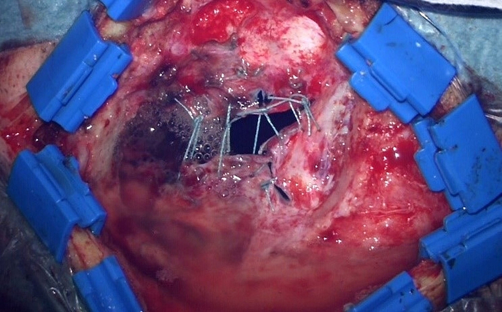 Large-gaps-after-dural-suturing-(>-3-mm)