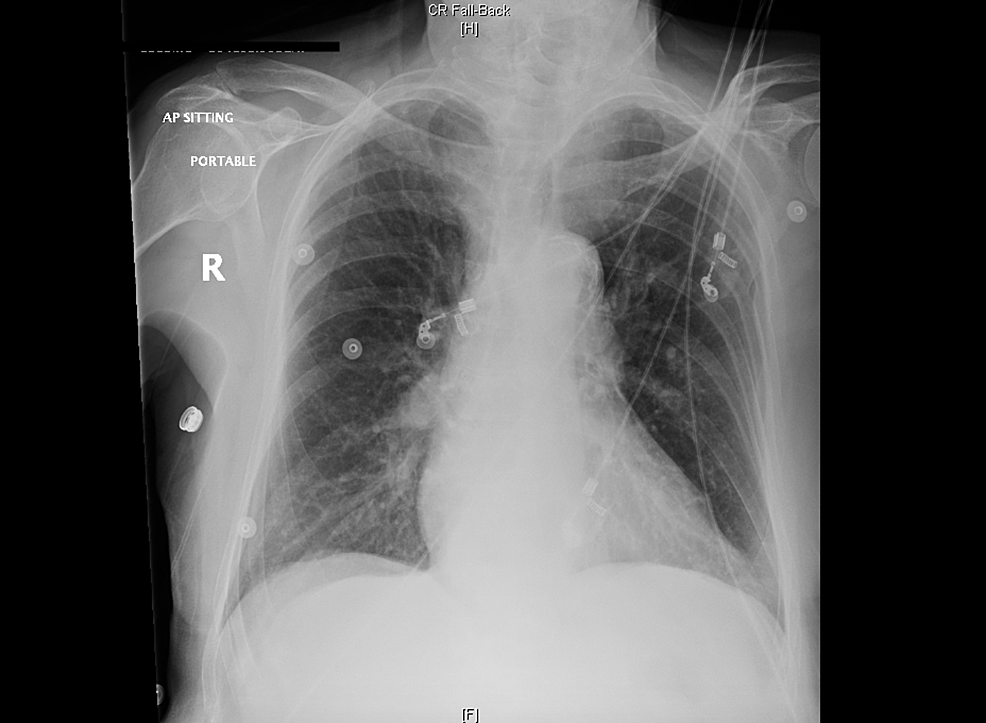 Portable-chest-X-ray-(CXR).