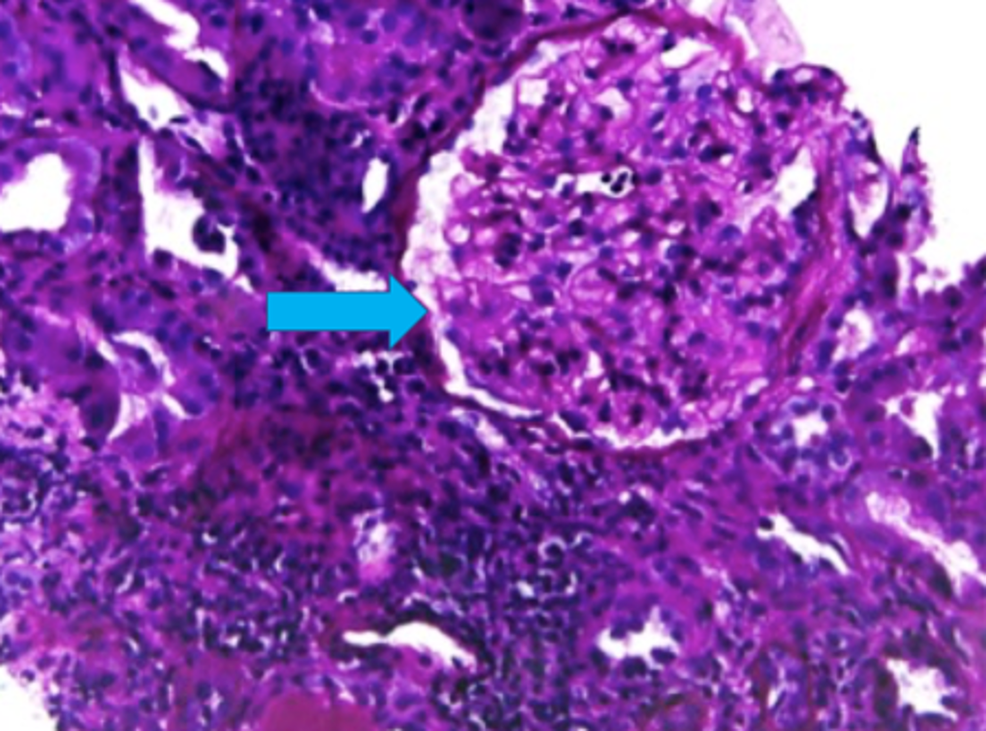 -PAS-stain-showing-thickened-glomerular-capillaries-(arrow)-signifying-membranous-nephropathy