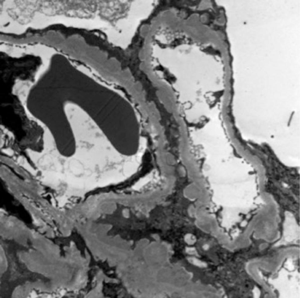 -Electron-microscopy-indicating-the-presence-of-sub-epithelial-deposits