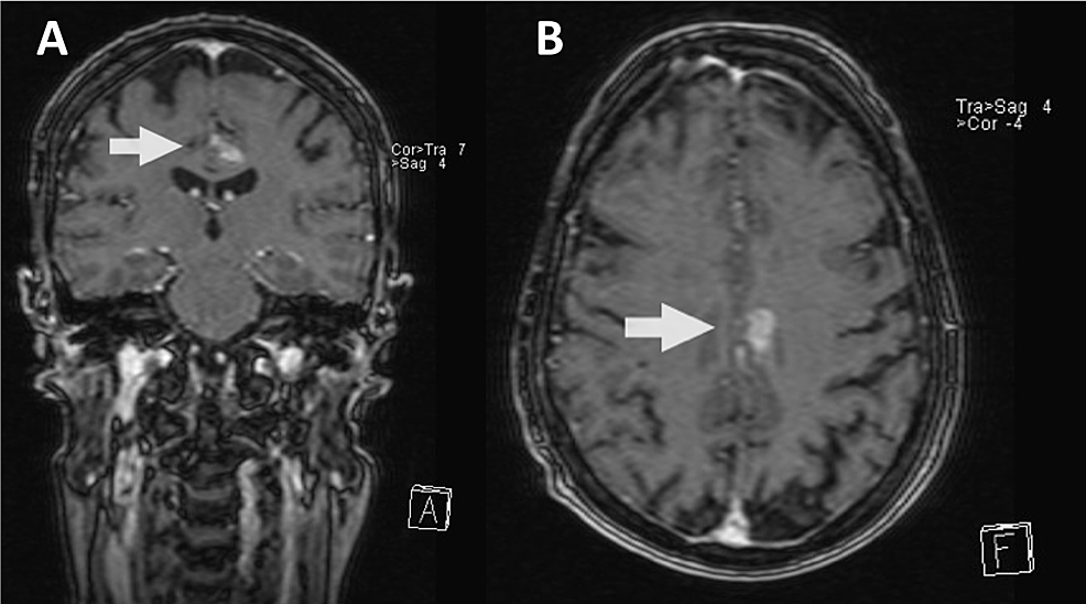 Patient-2-magnetic-resonance-imaging-(MRI)-causing-division-between-readers
