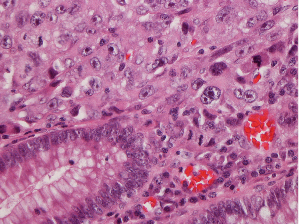 Colon-polyp:-haematoxylin-and-eosin-stain-40x,-non-small-cell-carcinoma,-poorly-differentiated,-undermining-mucosa-with-the-same-morphology.