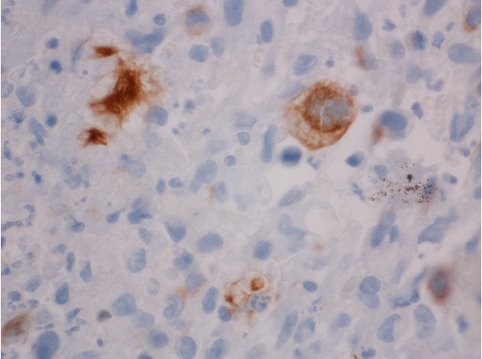 Colon-polyp:-immunohistochemical-stain-60x,-cytokeratin-7-(CK7)-positive.-Not-as-many-cells-are-positive-but-the-full-immunohistochemical-analysis-is-the-same.