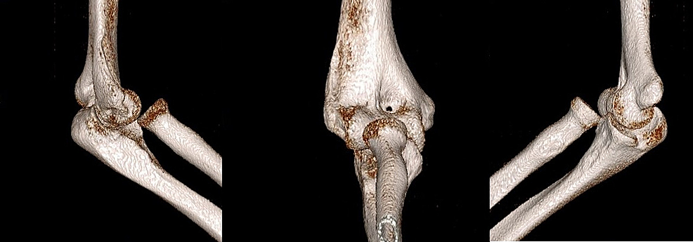 Computed-tomography-(CT)-images-of-the-elbow-show-isolated-traumatic-anteromedial-radial-head-dislocation.