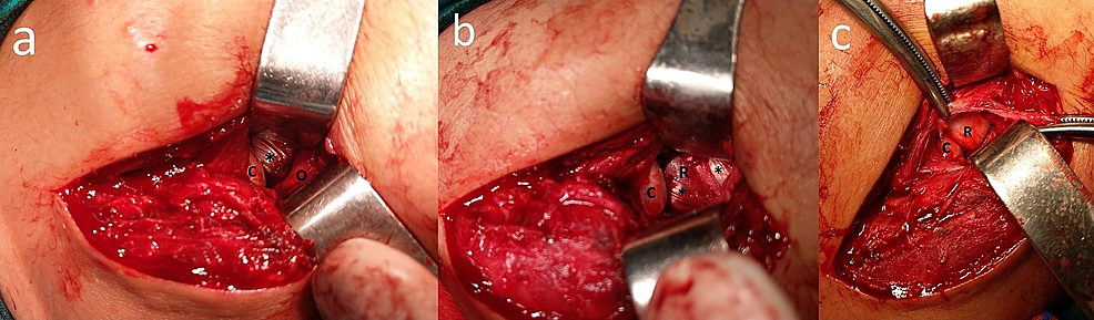 Intraoperative-view-of-the-patient.