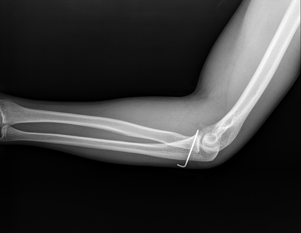 Postoperative-radiographic-images-of-the-patient.