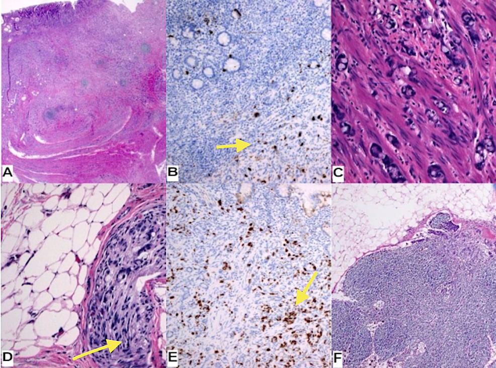 A.-Haemotoxylin-and-Eosin-stain-(HE)-1.25x-B.-Chromogranin-A-10x---focal-positive-(yellow-arrow)-C.-HE-20x-D.-HE-perineural-invasion-(yellow-arrow)-E.-Synaptophysin-10x---focal-positive-(yellow-arrow)-F.-HE-lymph-node-metastasis,-keratin-AE1-3-positive