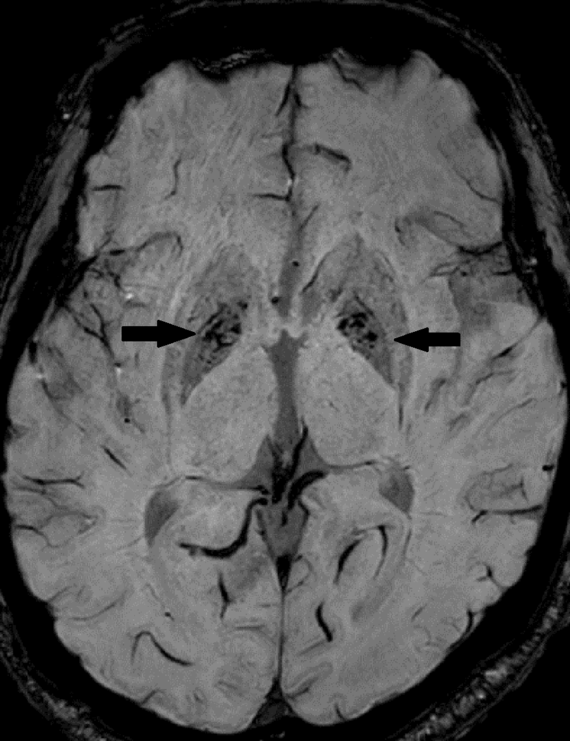 Cureus | Eye-of-the-tiger Sign in Neurodegeneration with