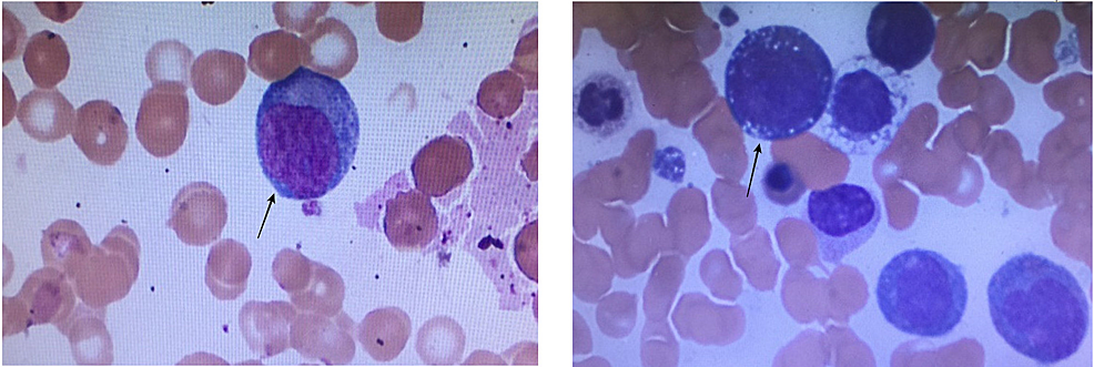 Peripheral-Blood-Smear-Picture
