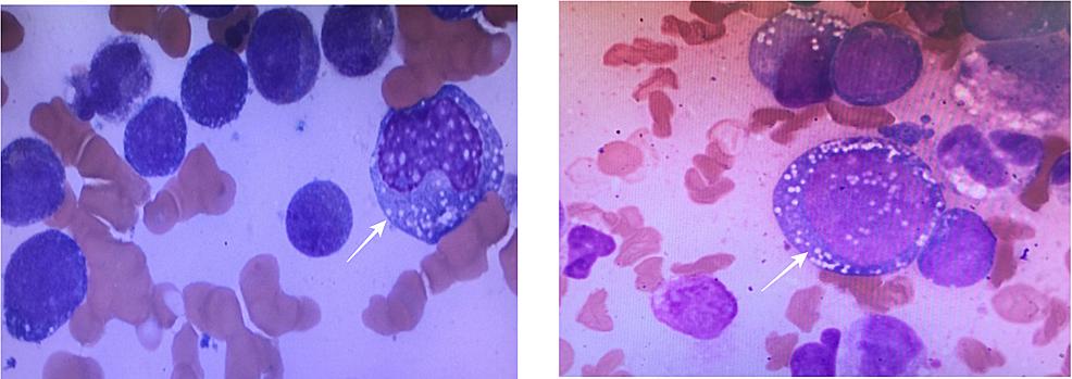 Bone-Marrow-Aspiration-Showing-Monoblasts