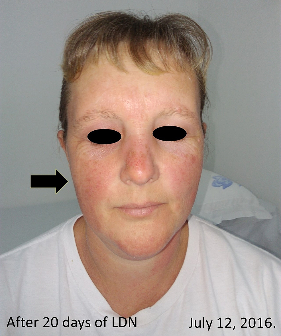 After-20-days-treatment-with-4.5-mg-LDN-orally.