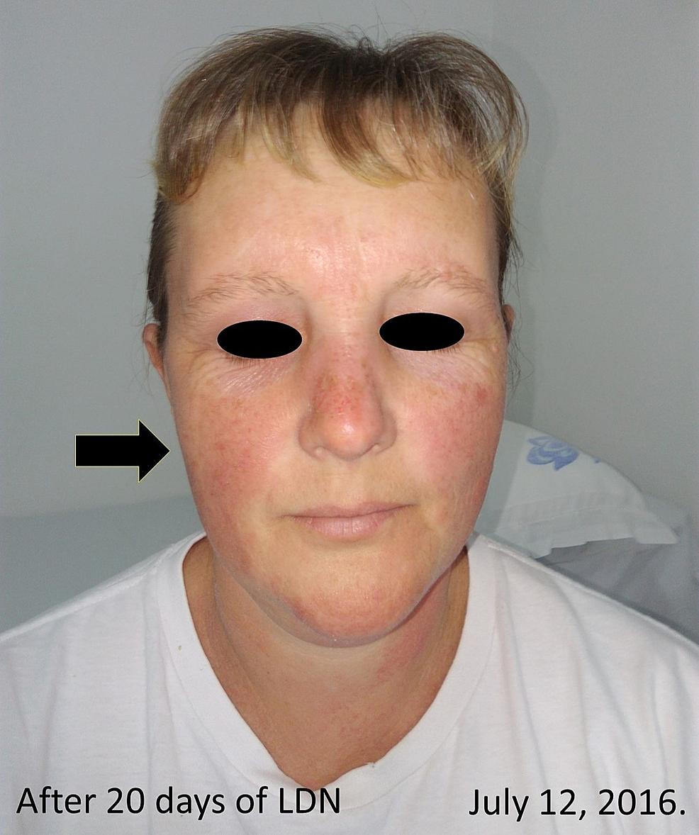 Dopo 20 giorni di trattamento-con-4,5-mg-LDN-oralmente.