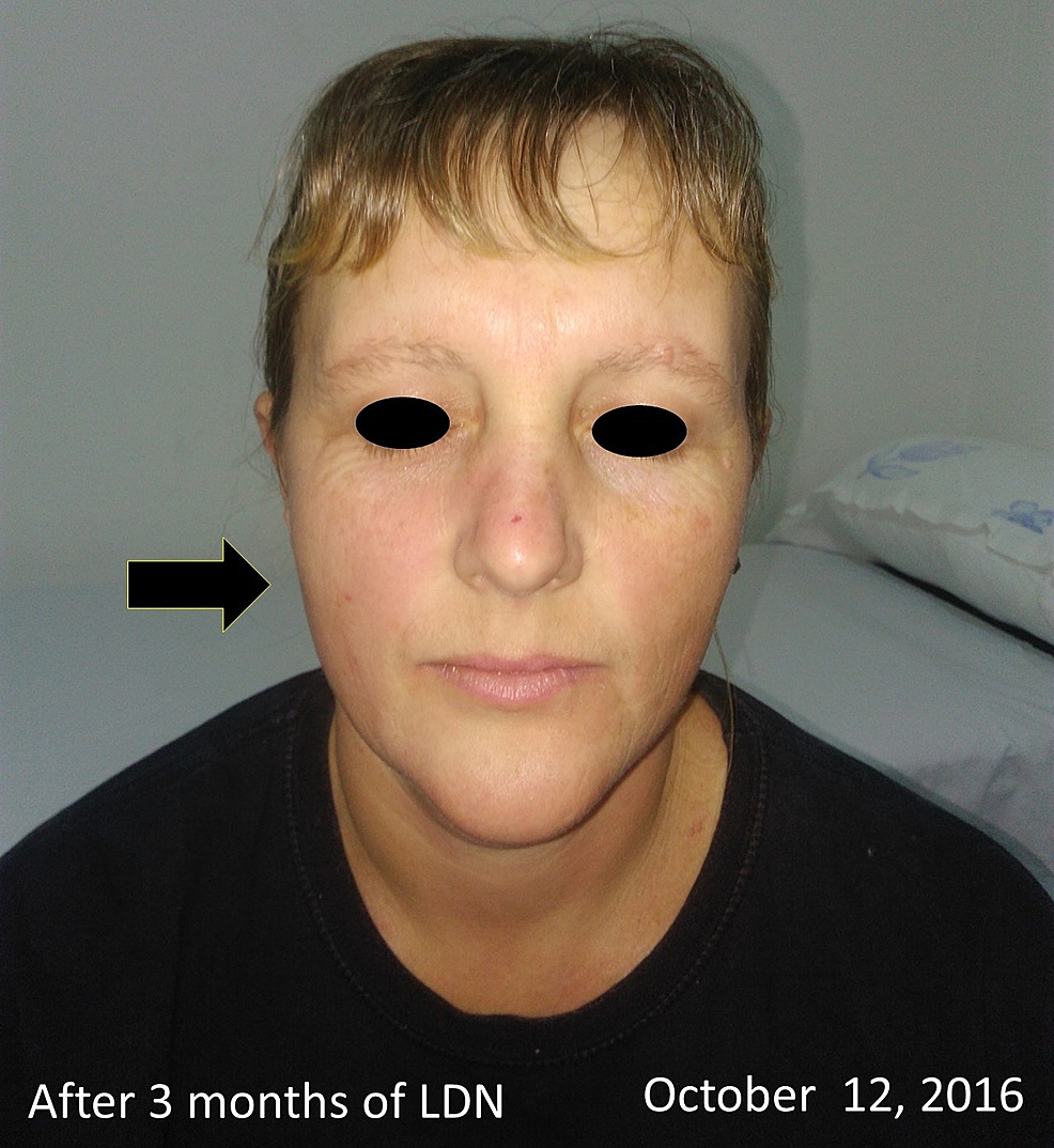 Picture-after-three-months-of--treatment-with-4.5-mg-LDN-orally