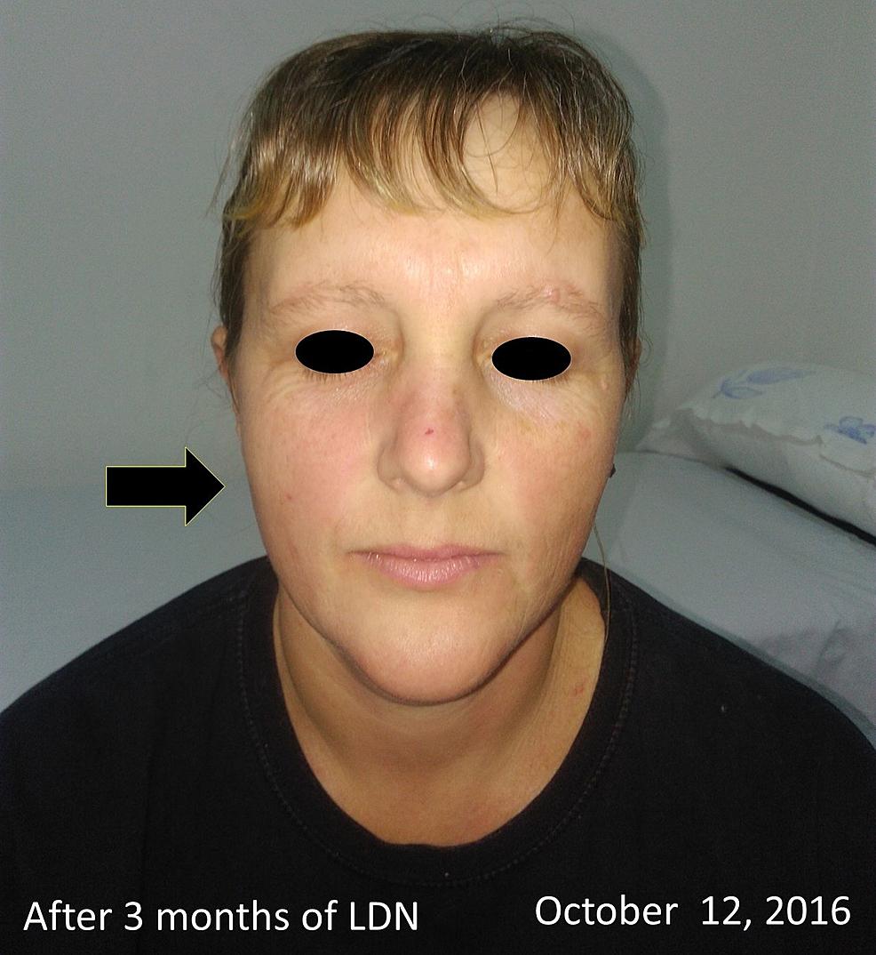Picture-dopo-tre-mesi-di - trattamento-con-4,5-mg-LDN-via orale