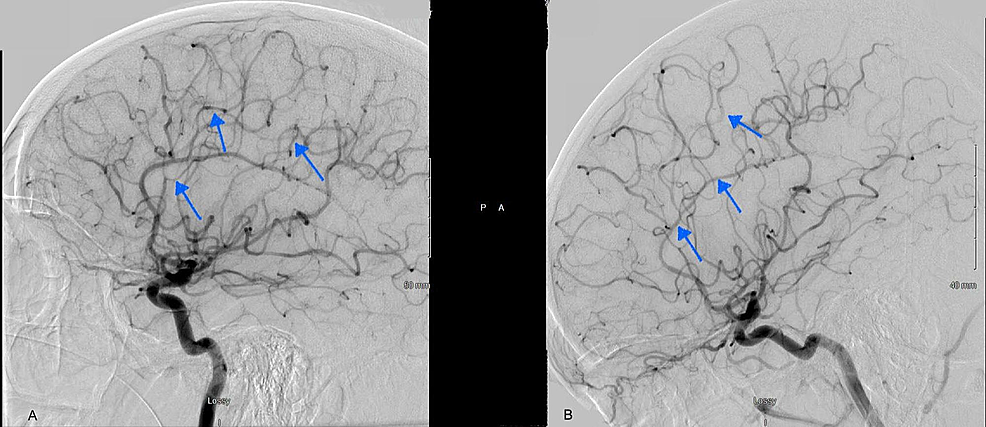 Diagnostic-cerebral-angiogram-at-the-time-of-admission-showing-severe-narrowing-of-the-intraluminal-vessels,-predominantly-MCA-and-ACA-distribution-(A).-Repeat-angiogram-at-three-months-follow-up-(B)-showed-resolution-of-the-previously-seen-vasospasm.
