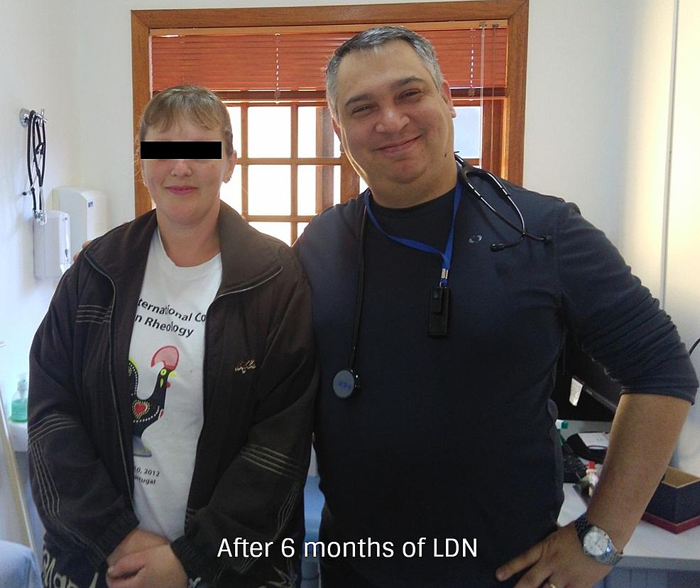 Dopo sei mesi-di-trattamento-con-4,5-mg-LDN-oralmente