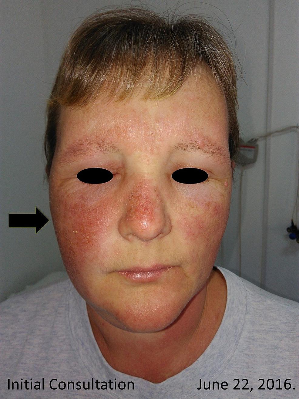 Initial-consultazione-facciale-foto