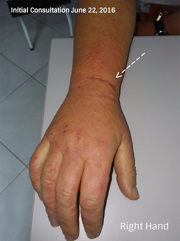 Bilaterale-edema-di-alto-and-inferiore extremities- (Initial-consultazione)