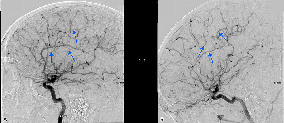 Another-view-of-the-diagnostic-cerebral-angiogram-at-the-time-of-admission-showing-severe-narrowing-of-the-intraluminal-vessels-predominantly-MCA-and-ACA-distribution-(A).-Repeat-angiogram-at-three-months-follow-up-(B)-showing-resolution-of-previously-seen-vasospasm.